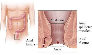 Pengobatan Terbaik Untuk Penyakit Fistula Ani