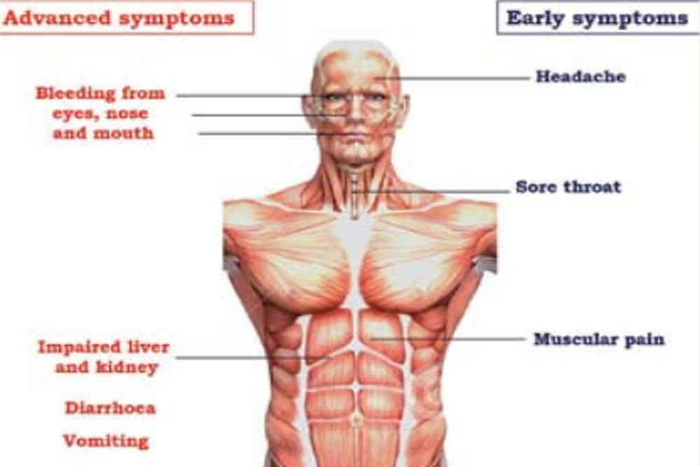 Ebola virus disease symptoms