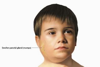 Obat Herbal Gondok Untuk Anak