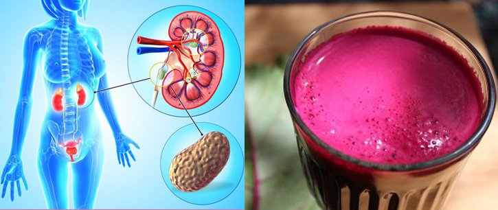 Cleanse Your Liver Of Waste And Toxins