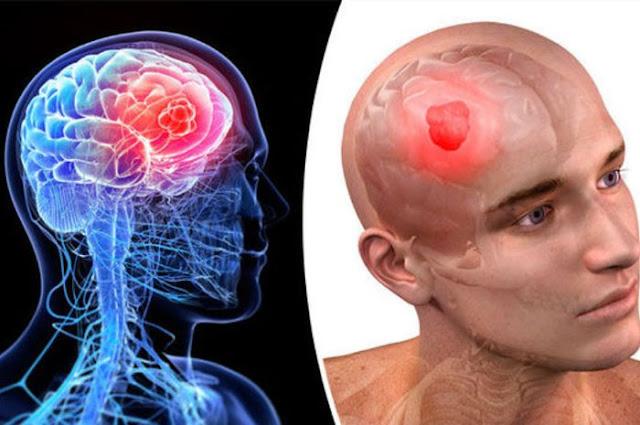 16 Gejala Kanker Otak yang Harus Diwaspadai Sebelum Parah