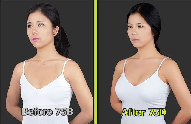 Breast Augmentation Surgery- Premium Teardrop Implant Dual Chamber-7600
