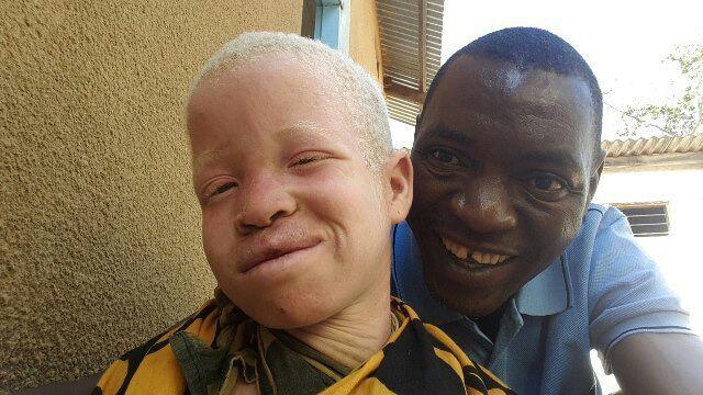 Daniel Mbega na mauaji ya albino