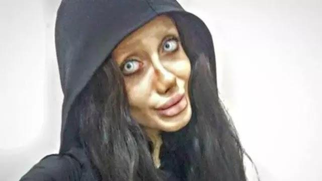 Gadis yang Operasi Mirip Jolie Ternyata Rekayasa