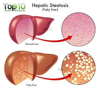 fatty liver-hati berlemak-perlemakan hati