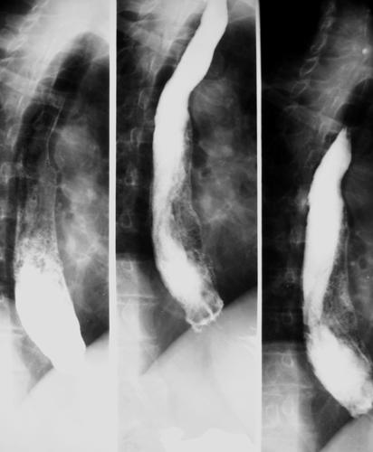 Hernia de hiato esofagograma