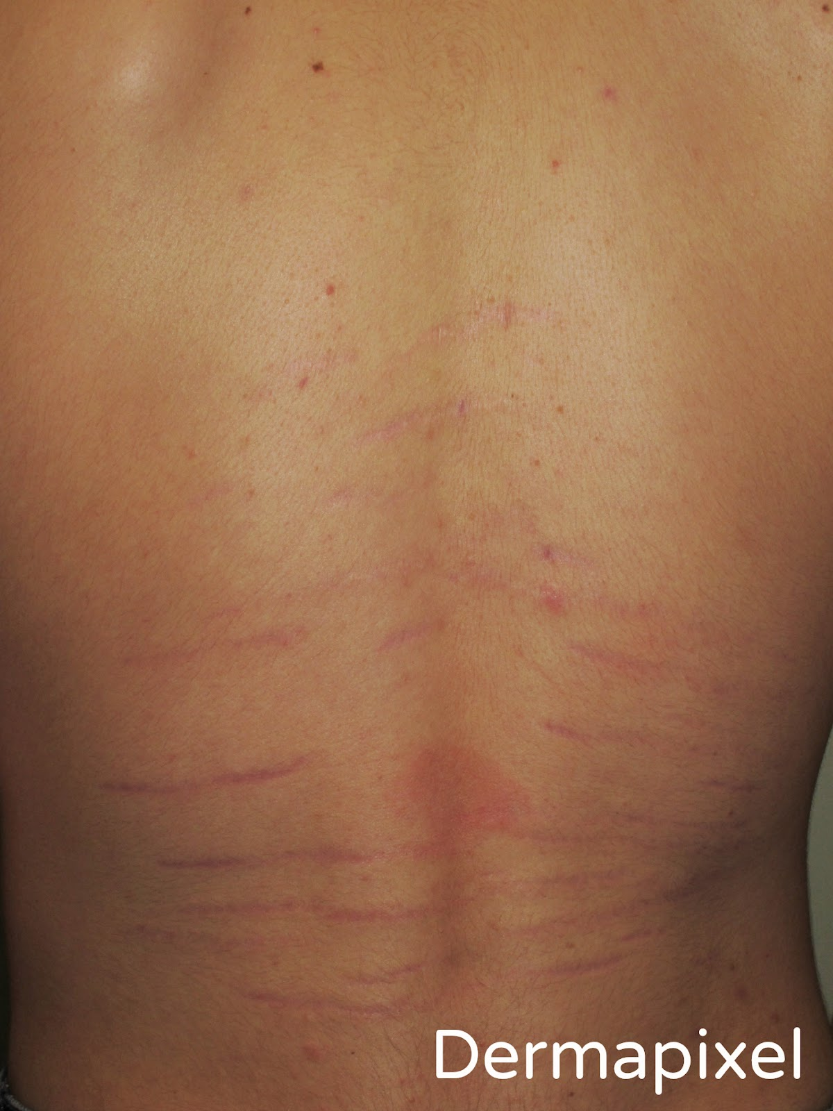 marcas raras en la espalda