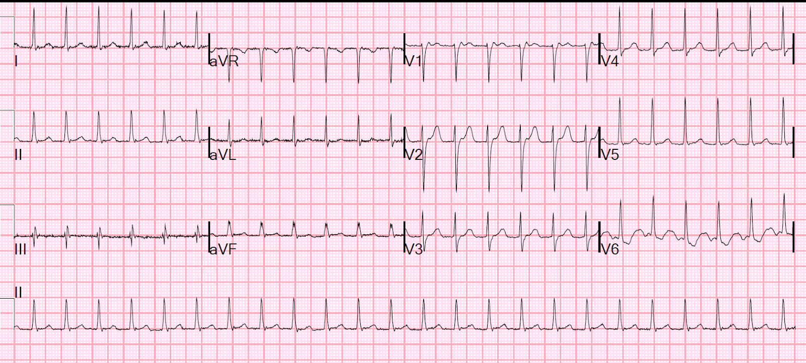 What Is Svt >> Dr Smith S Ecg Blog An Apparent Svt That Does Not Persistently