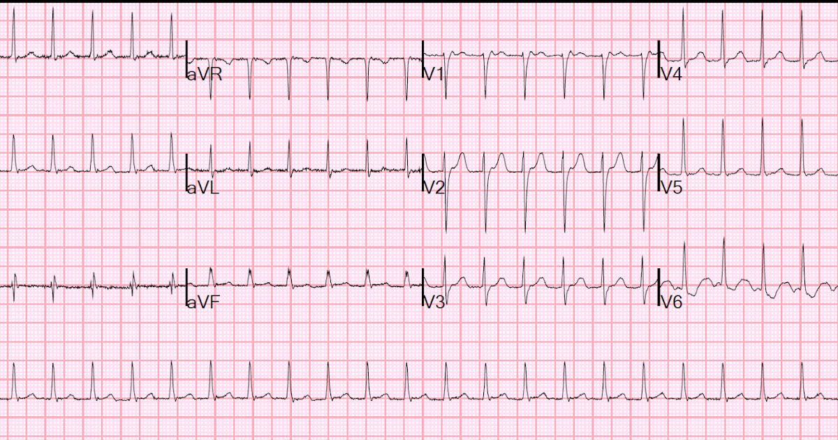 What Is Svt >> Dr. Smith's ECG Blog: An apparent SVT that does not ...