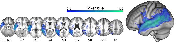 図:左脳の脳卒中で半側空間無視と腹側注意ネットワーク