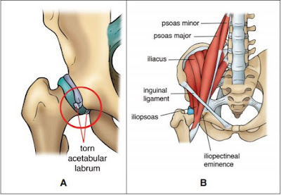 Anatomy of the Hip Diagram - El Paso Chiropractor