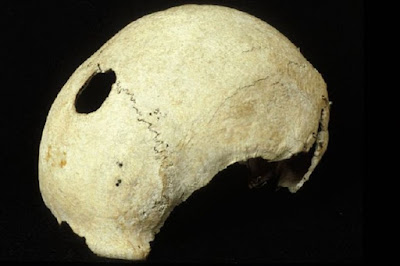Battle-scarred skull found at Culloden 3D scanned