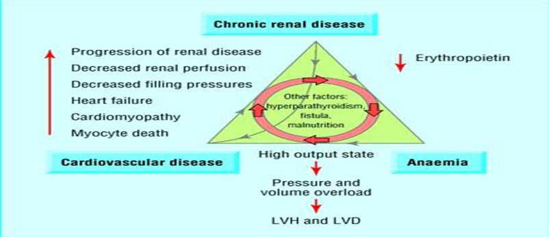 Triad of chronic kidney disease, anemia, and cardiovascular disease