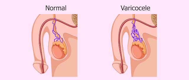 Asthenozoospermia dan Varikokel