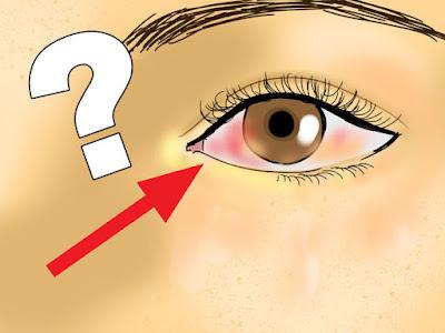 08 Choses que vos yeux peuvent vous dire à propos de votre santé (Si vous savez ce qu'il faut chercher)