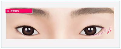 phẫu thuật hạ đuôi mắt