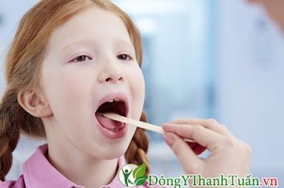 thuốc chữa bệnh viêm họng ở trẻ nhỏ