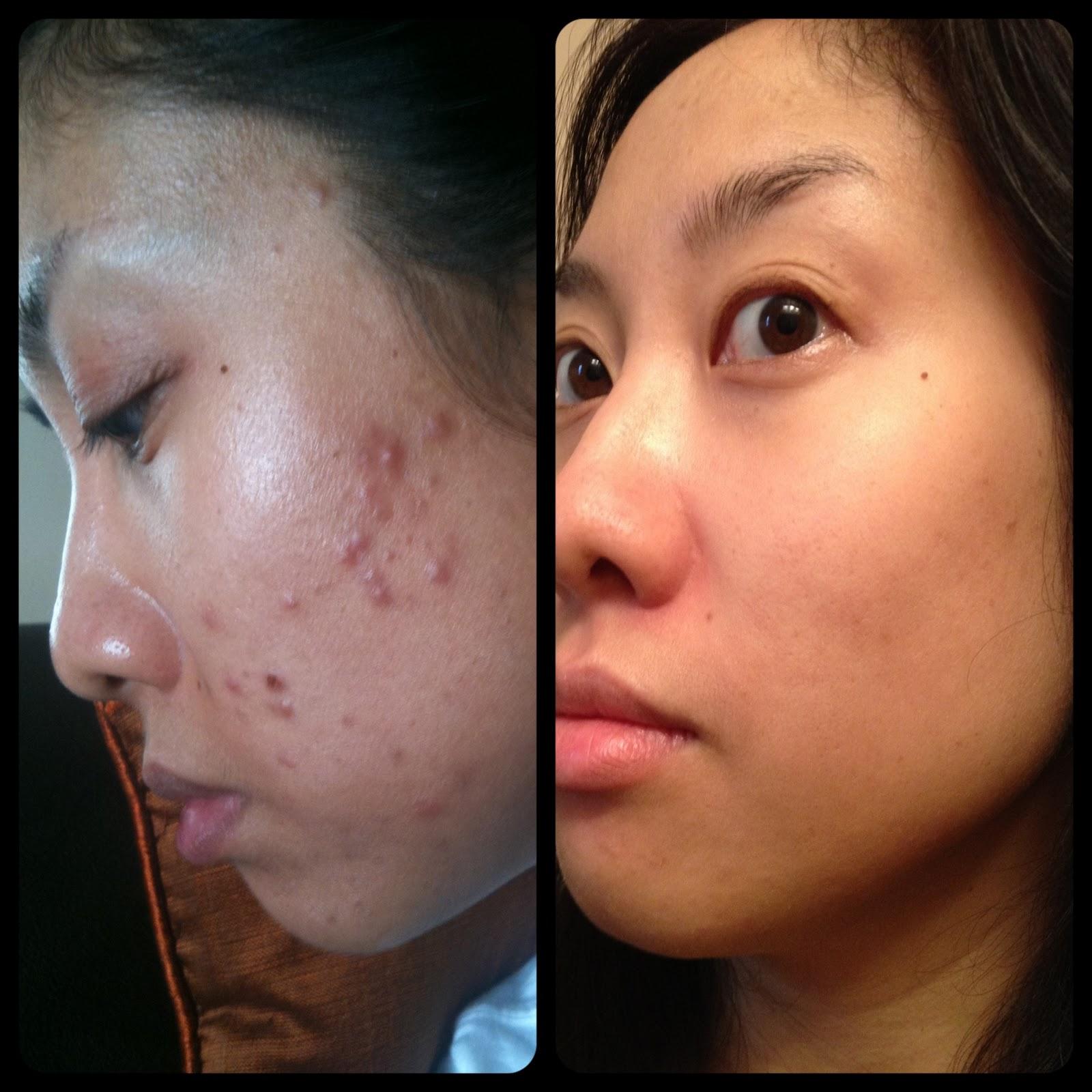 Acne Scar Treatment Chemical Peel Instructions