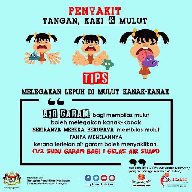 Tips melegakan ulser mulut HFMD