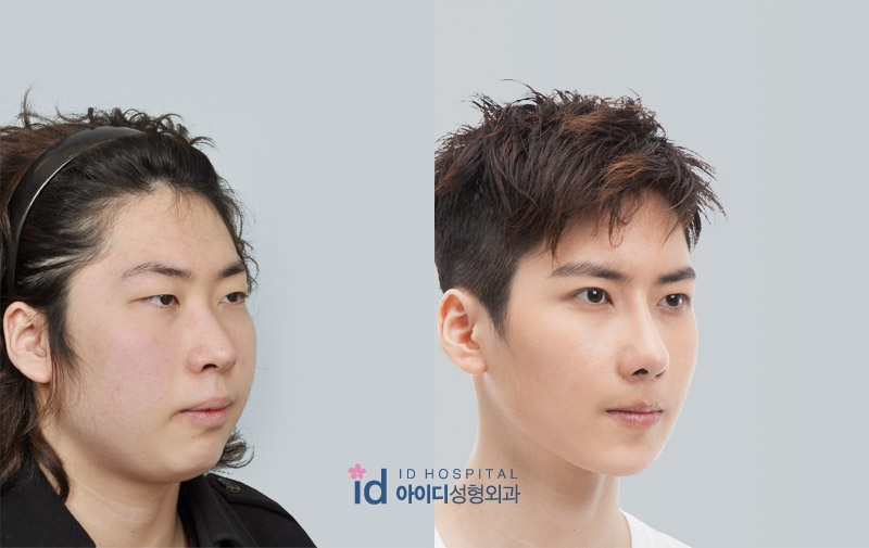 korean male plastic surgery