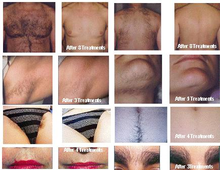 Krozenwart 08152054076 Permanent Dr Me Ping Gel Female Facial