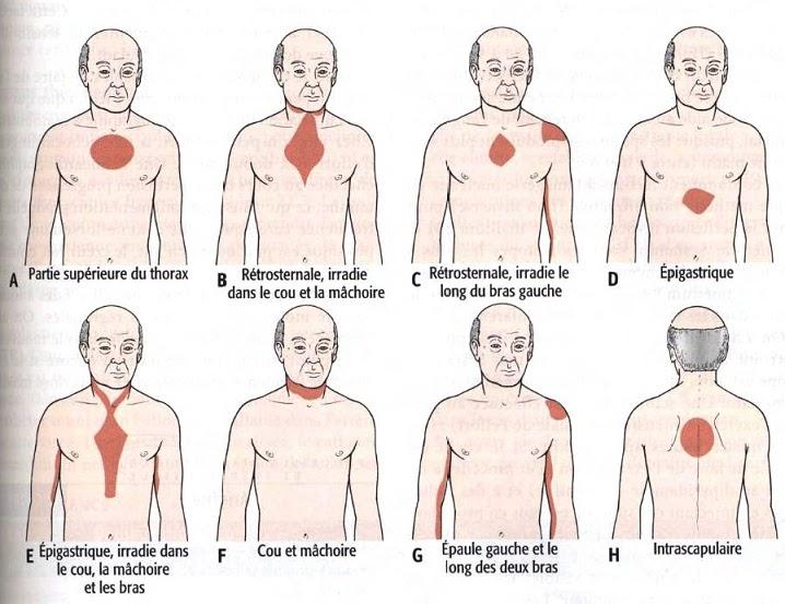 sensation de battement cardiaque irregulier