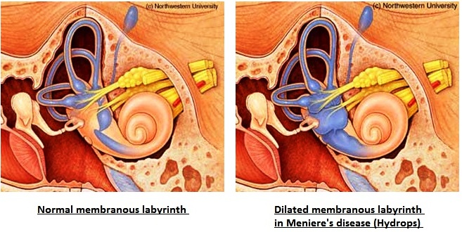 Question - Fluctuating and low frequency hearing loss, constant tinnitus of varying levels, Meniere's ruled out 2
