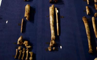 Το αρχαιότερο δείγμα καρκίνου εντοπίστηκε σε απολιθωμένο οστό
