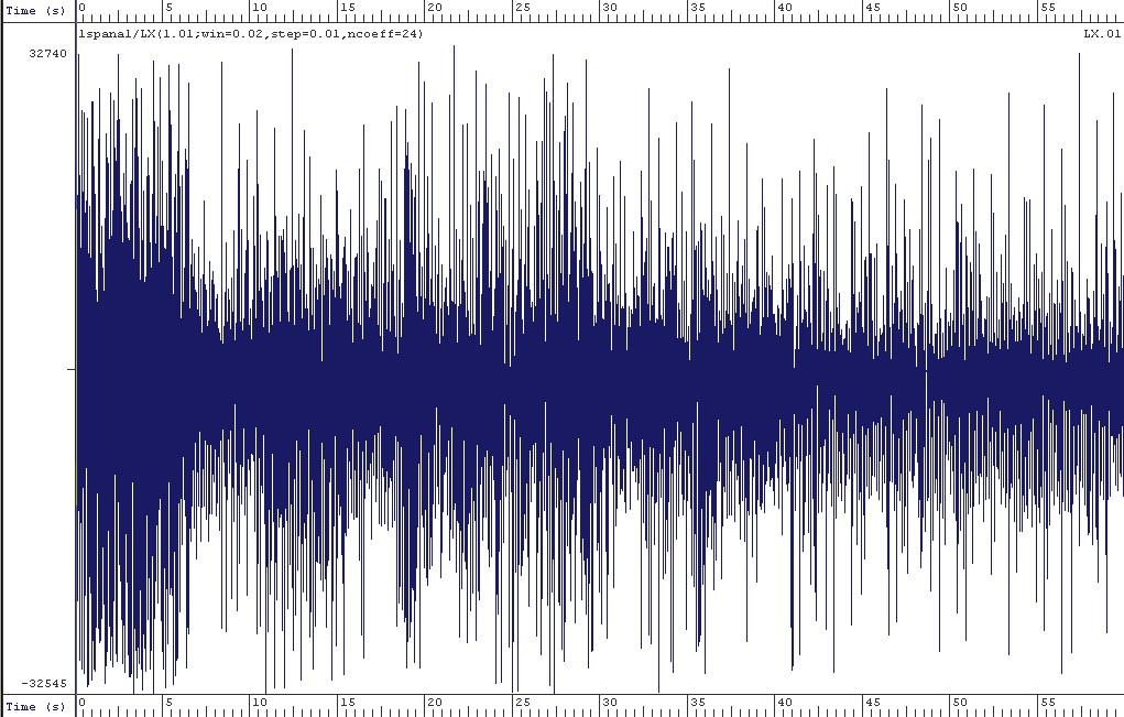 Appel De D 233 Tresse Capture Du Signal Sonore Dans Le Milieu