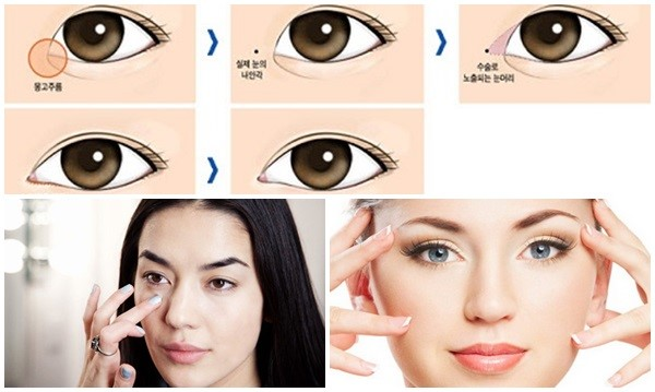Phương pháp cắt mí to barbie eyes là gì