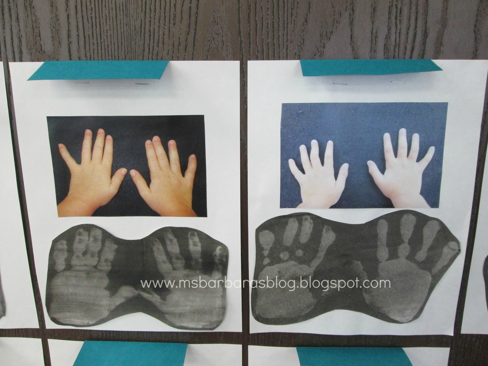 For The Children Uniquely You X Ray Handprints
