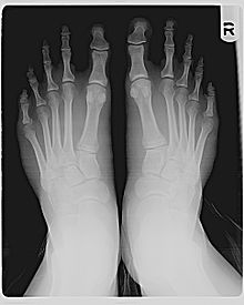 Morton's toe x-ray