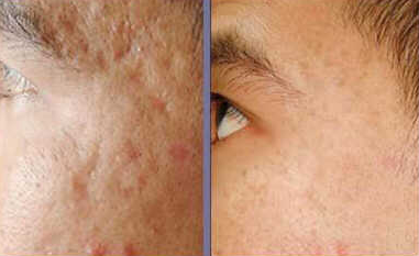 Treatment Of Acne Scar Removal Using Home Remedies Free 17 Plus