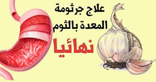 استخدام الثوم لعلاج جرثومة المعدة.