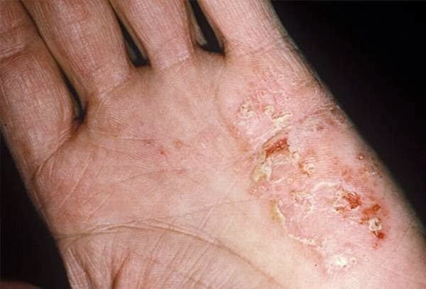 What is Eczema? - Causes, Symptoms & Treatment