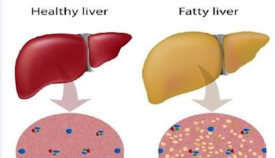 organ hati yang sehat dan tidak sehat