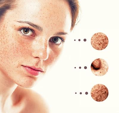 Éliminer les taches sur la peau naturellement