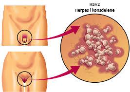 Obat Herpes Di Alat Kelamin Pria Dan Wanita