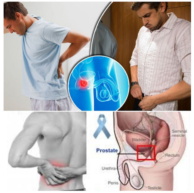 Prostate Cancer Back Pain