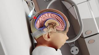 Noninvasix Develop Accurate Noninvasive Fetal Health Monitoring System