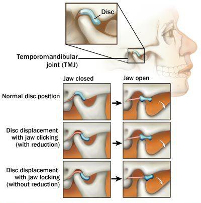 Temporomandibular joint disfunction