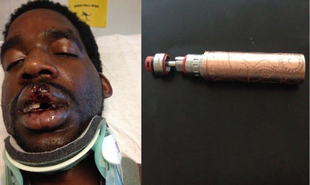 Korban Ledakan Rokok Elektrik Semakin Banyak, Ada di Wajah Bahkan Sampai Hilang Giginya