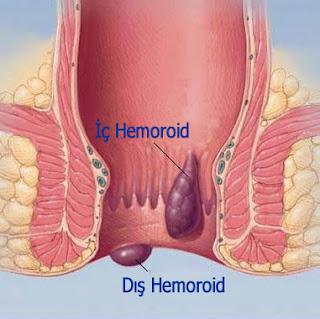 Hemoroid nasıl geçer