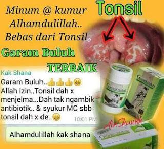 Tonsil sudah tidak menjelma