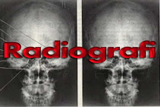 Faktor - Faktor Yang Mempengaruhi Gambaran Radiografi