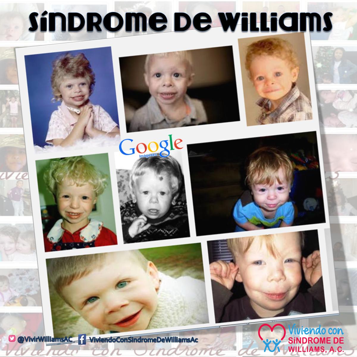 Qué Es Síndrome De Williams Viviendo Con Síndrome De Williams Ac