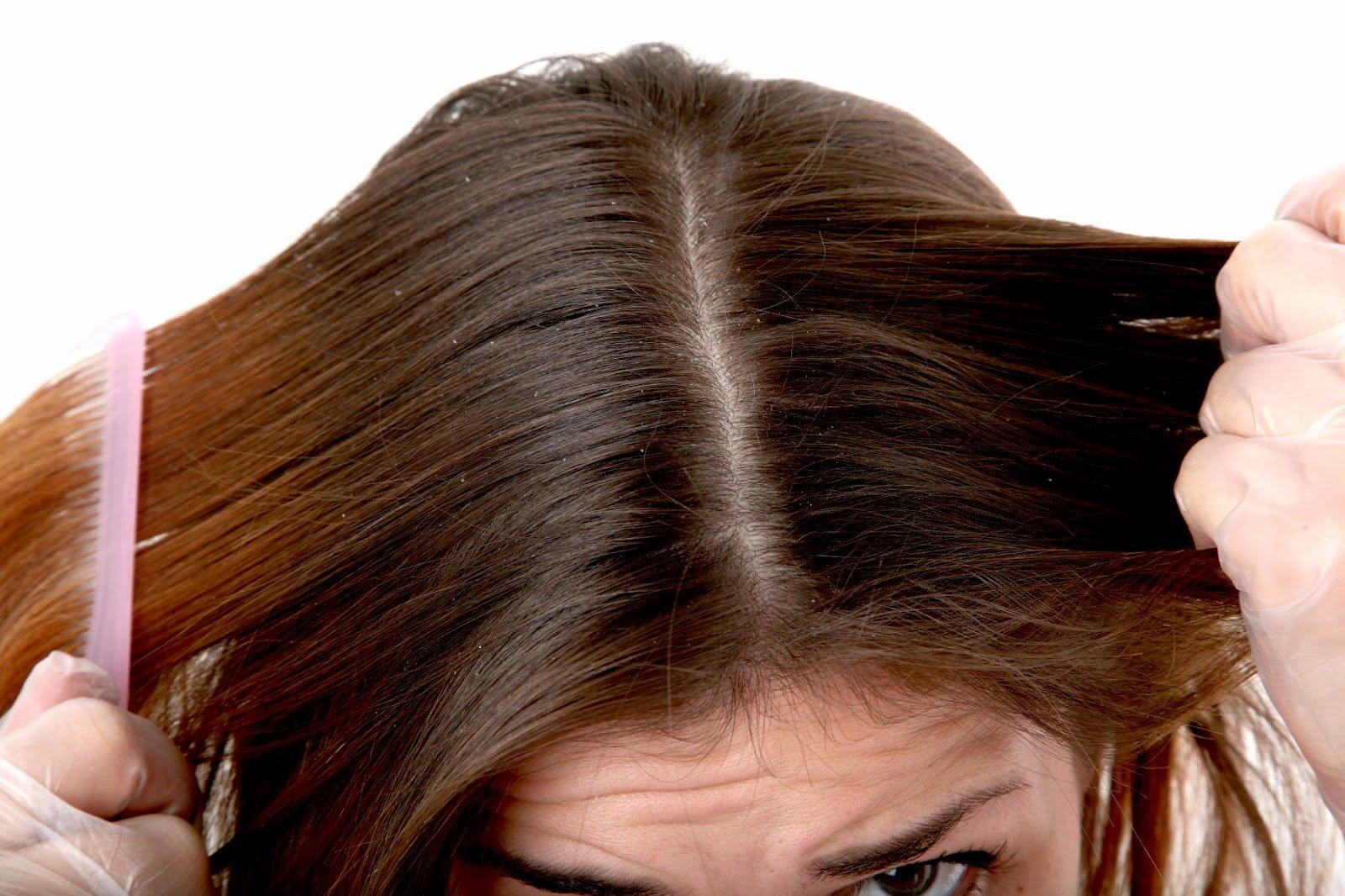 Cara Cepat Mengatasi Rambut Rusak Agar Terlihat Indah