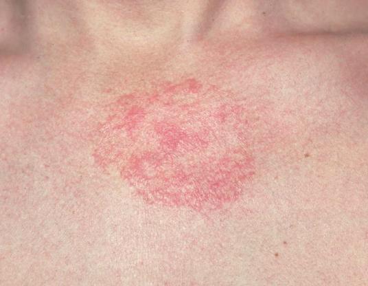 Herbal Chay Jo Daad Khaj Khujli Eczema ko Dur Bhagaye