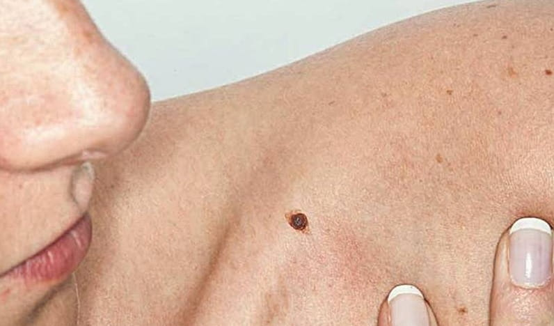 8 Types of Skin Cancer Treatment