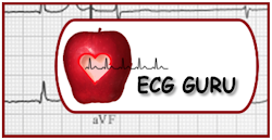 My Comments on ECG GURU